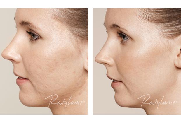 Restylane Skinboosters, Royal Clinics,, rúzs és más