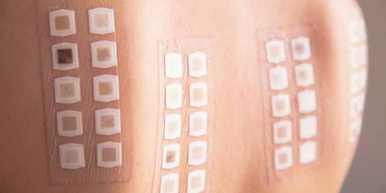 Kozmetikai allergia, túlérzékenység, allergén, rúzs és más