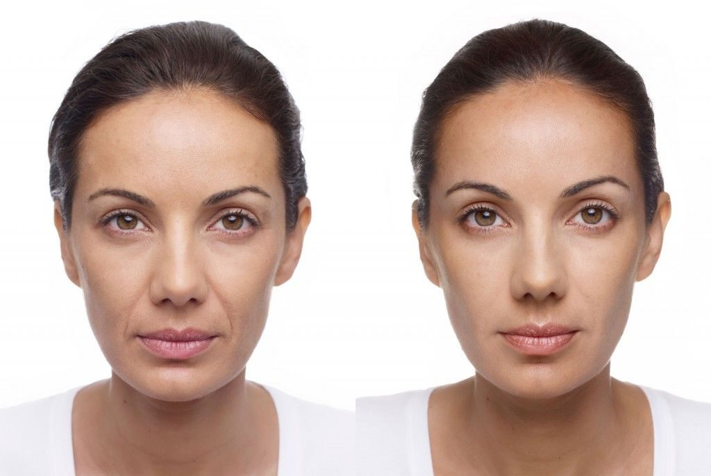 Volite before-after