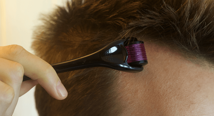 Hajhullas professzionális kezelése, Royal Clinics, rúzs és más