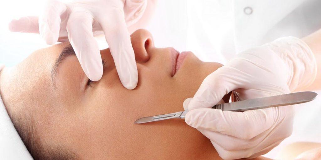 dermaplaning, női arcborotválás, penge, borotva, bőrfelszín megújítás, szőrtelenítés, rúzs és más