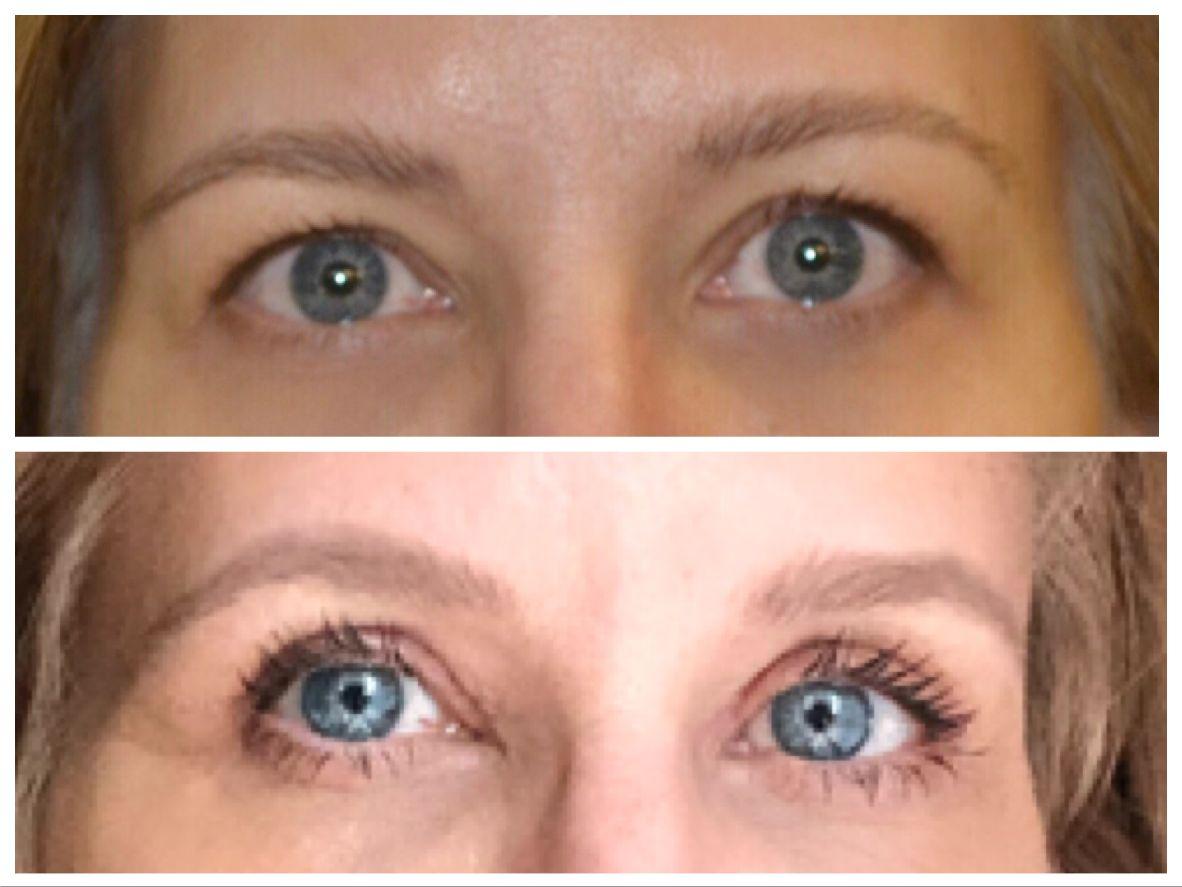 dr.boros lászló, boros lászló, szemhéjplasztika, szemhéjkorrekció, szemhéjfelvarrás, plasztikai, plasztikai sebész, rúzs és más, beavatkozás, szépészeti, szemhéjplasztika mindenkinek, ruzs es mas, elotte, utana, elotte-utana